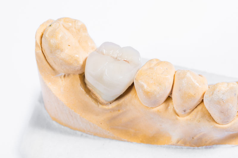 dental crowns on dental impression