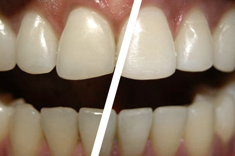 before and after dental bonding by dr hughs