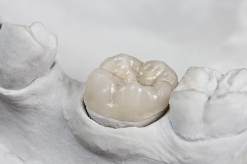 dental onlay on tooth model