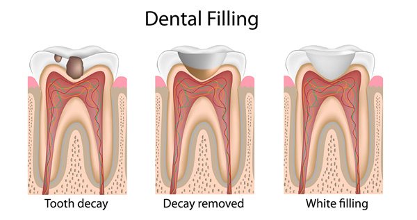 white dental filling process