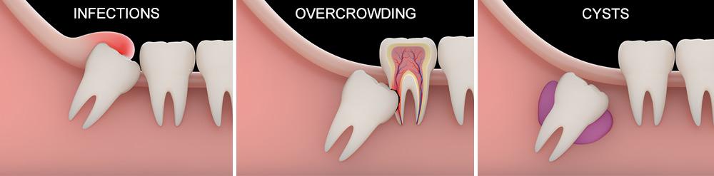 Surgical Treatments | Christie Park Dental | Dr  Andre Hughes